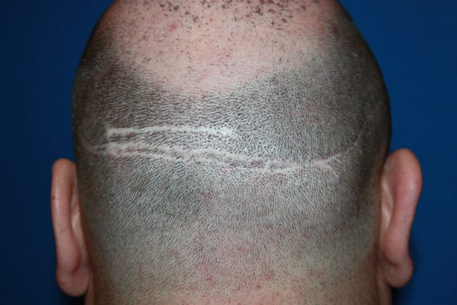 Post operative-Donor Linear Scar
